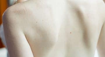 lussazione spalla come curarla