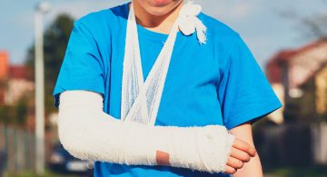 fratture nei giovani - Sportiva Mens